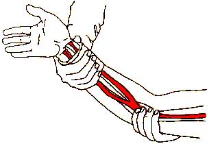'Prevención de lesiones deportivas'