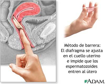 'Salud reproductiva'