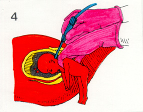 'Aborto'