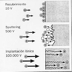 Implantación biónica