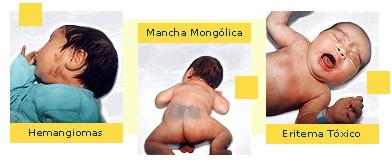 'Anatomía del recién nacido'